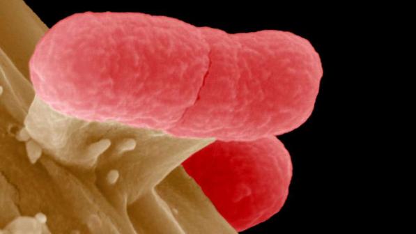 Scoperto un nuovo batterio resistente agli antibiotici: è la variante di un ceppo di Klebsiella