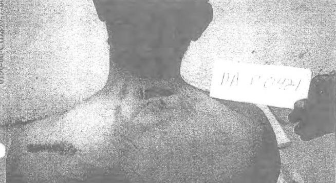Foto torture a detenuti, Pentagono le pubblica dopo aver perso battaglia legale