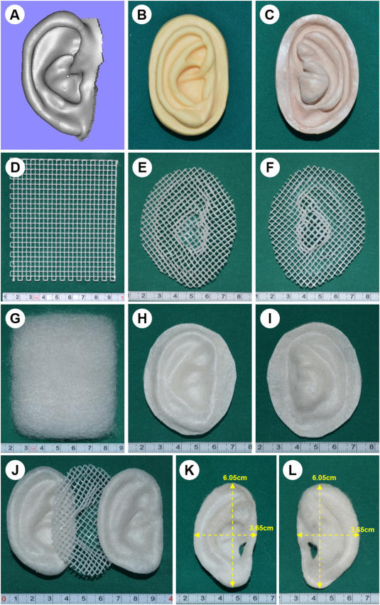Cina, ricostruito orecchio con una tecnica 3D