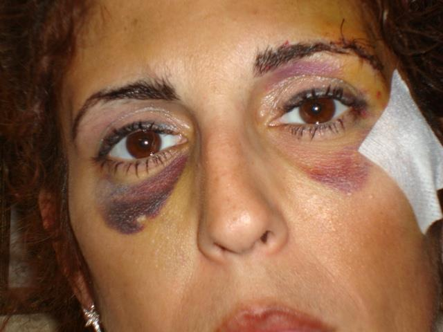 Lidia, massacrata dall ex:  Ho denunciato ma sono stata abbandonata