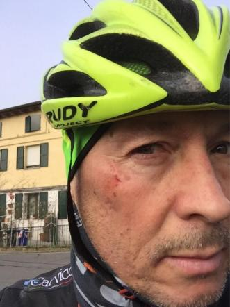 Paolo Belli, incidente in bicicletta: urtato da un'auto che non si ferma