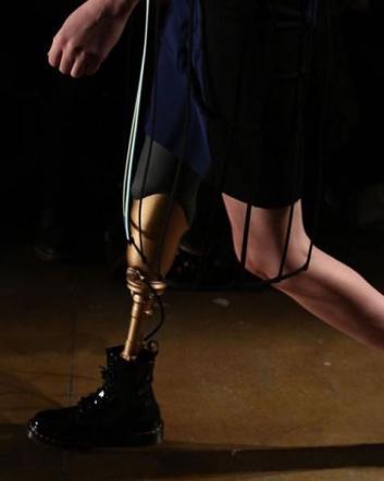 Perse una gamba a causa di un assorbente interno, modella torna in passerella