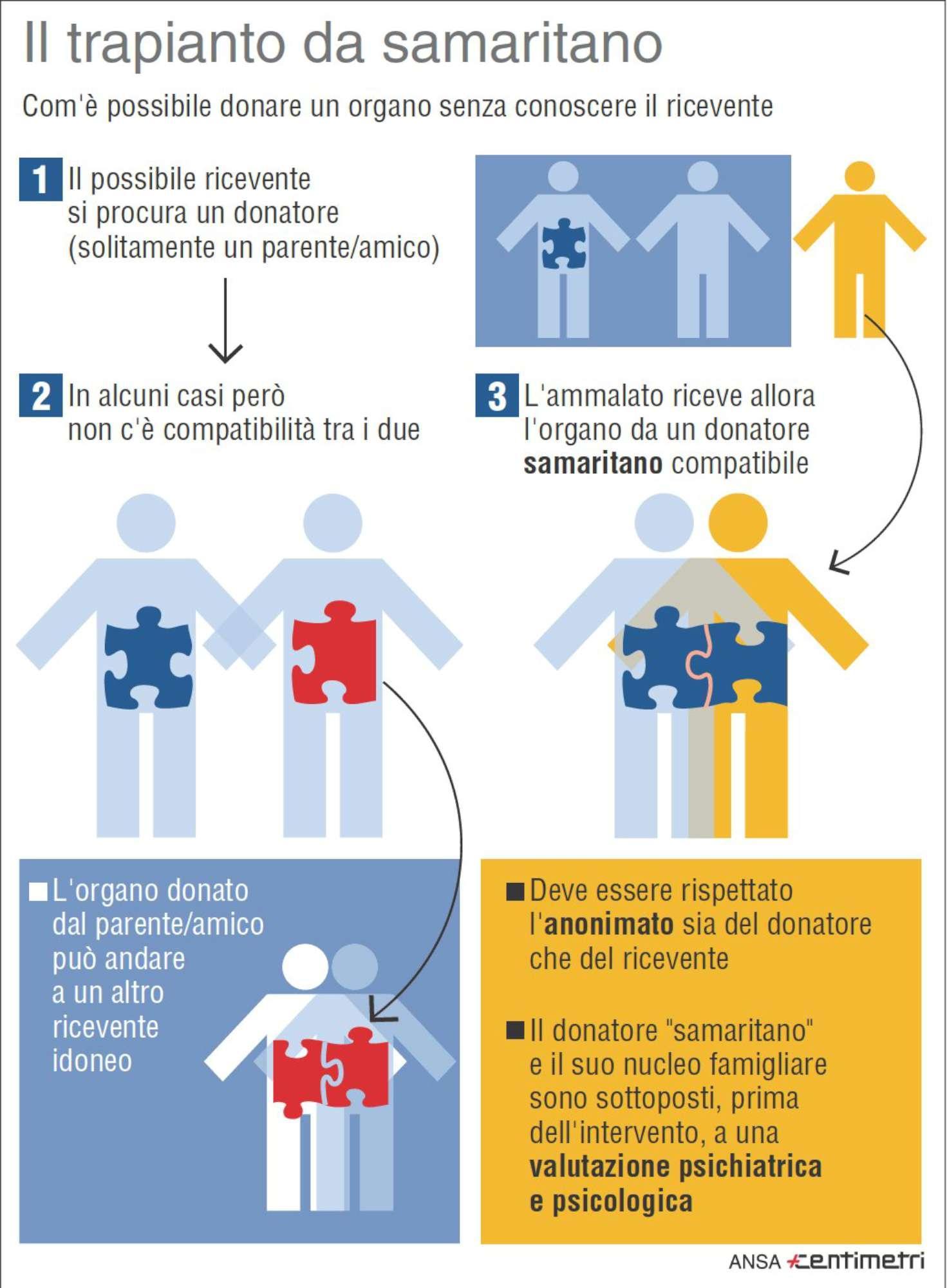 Il trapianto da samaritano, che cos è e come funziona