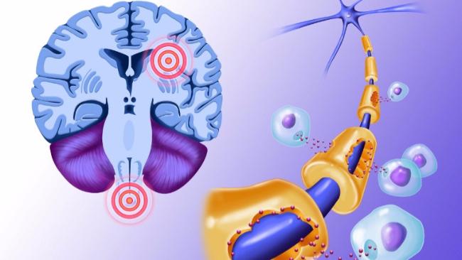 Sclerosi multipla, nuove speranze da un trattamento anti-cancro