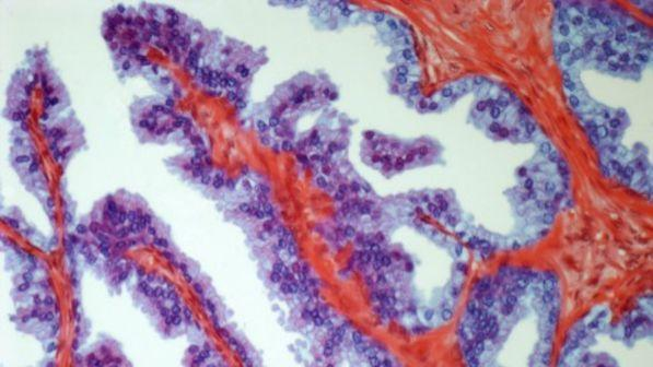 test del cancro alla prostata