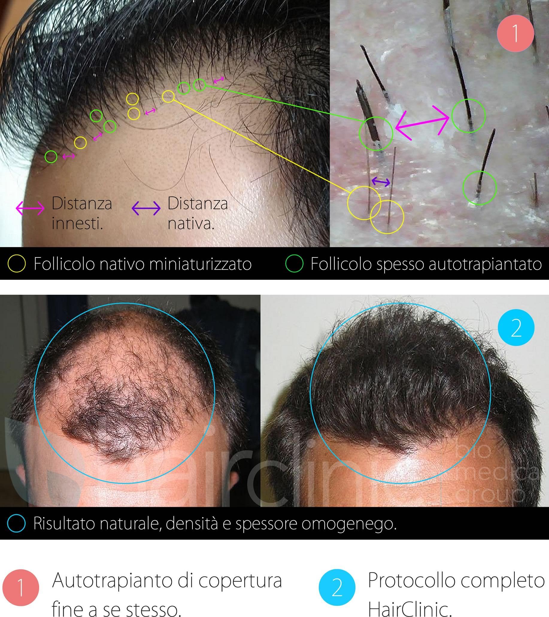 Trapianto di capelli  risultati e limiti - Tgcom24 1c270a06741b