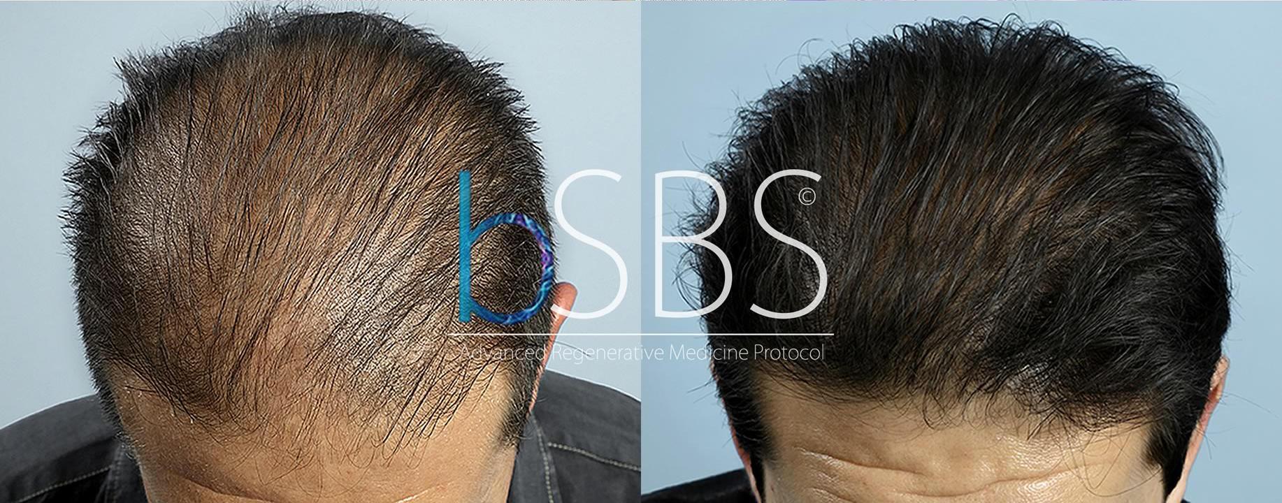 Calvizie  il trapianto di capelli non è la cura - Tgcom24 6f07e65aed5b