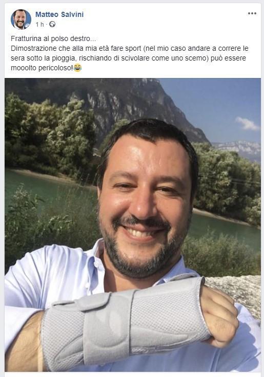Salvini cade facendo jogging e si rompe il polso