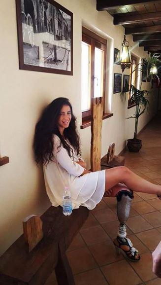 Chiara Bordi, in corsa per Miss Italia con una protesi alla gamba