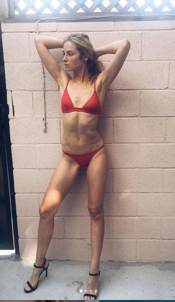 Bridget: le foto dopo il licenziamento e quelle dopo la sconfitta dell anoressia