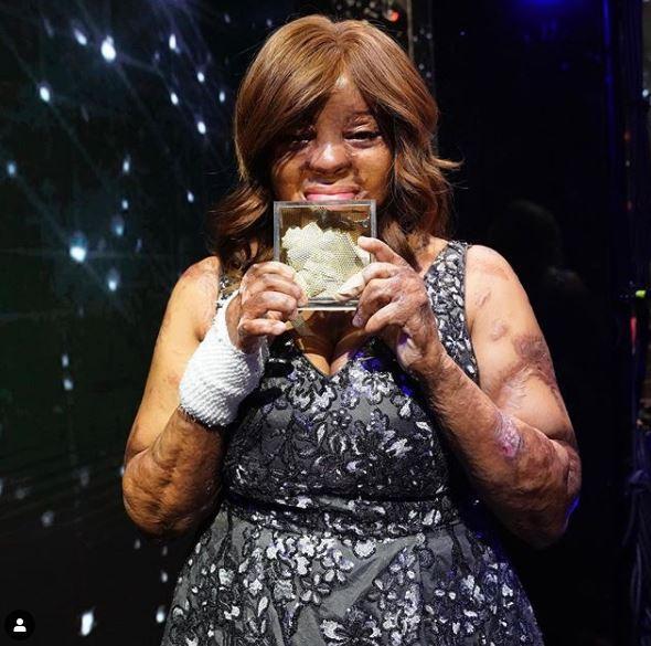 America s Got Talent: Kechi Okwuchi, sopravvissuta ad in incdente aereo è in finale