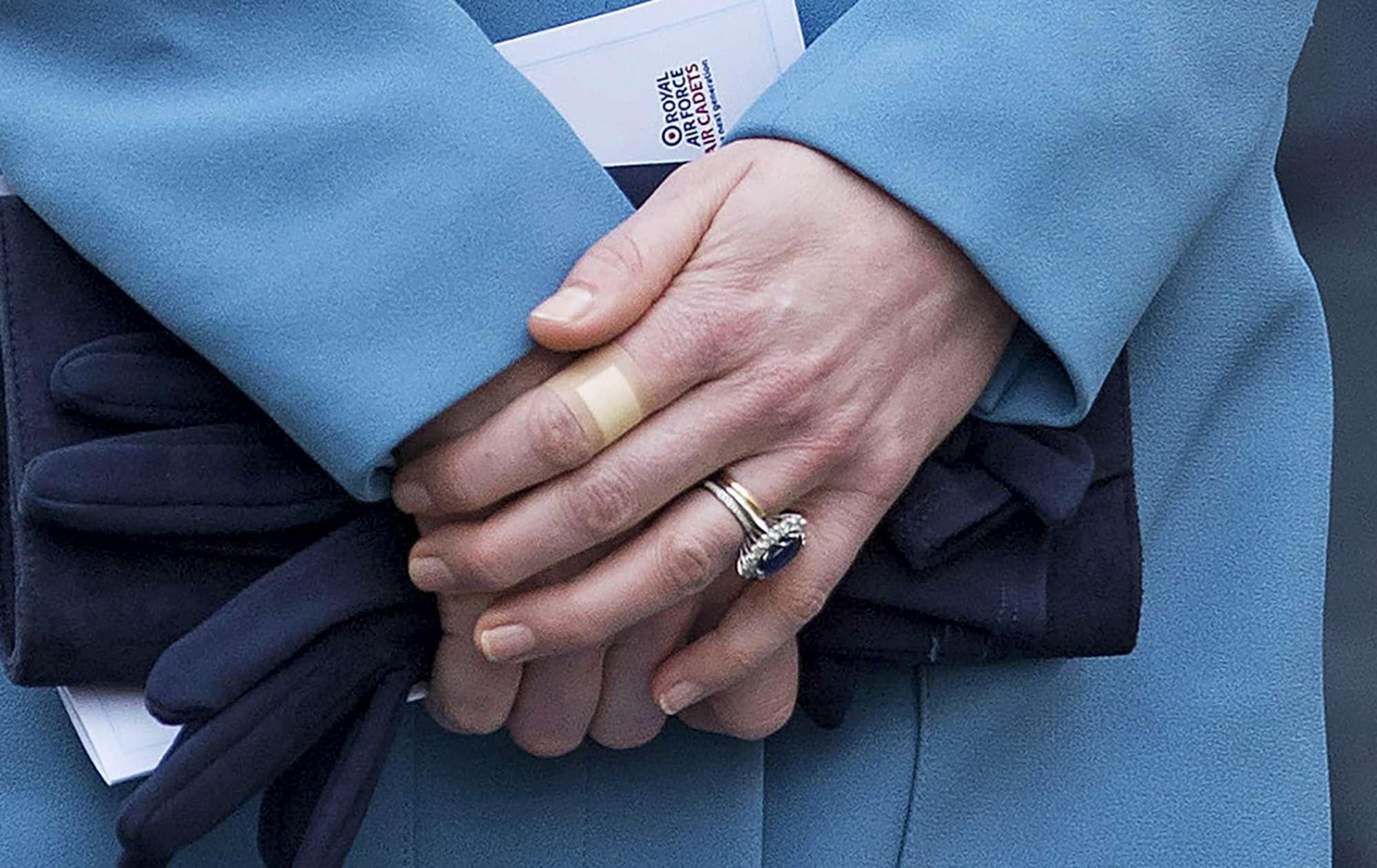 Kate Middleton ha sempre cerotti alle dita, perché?