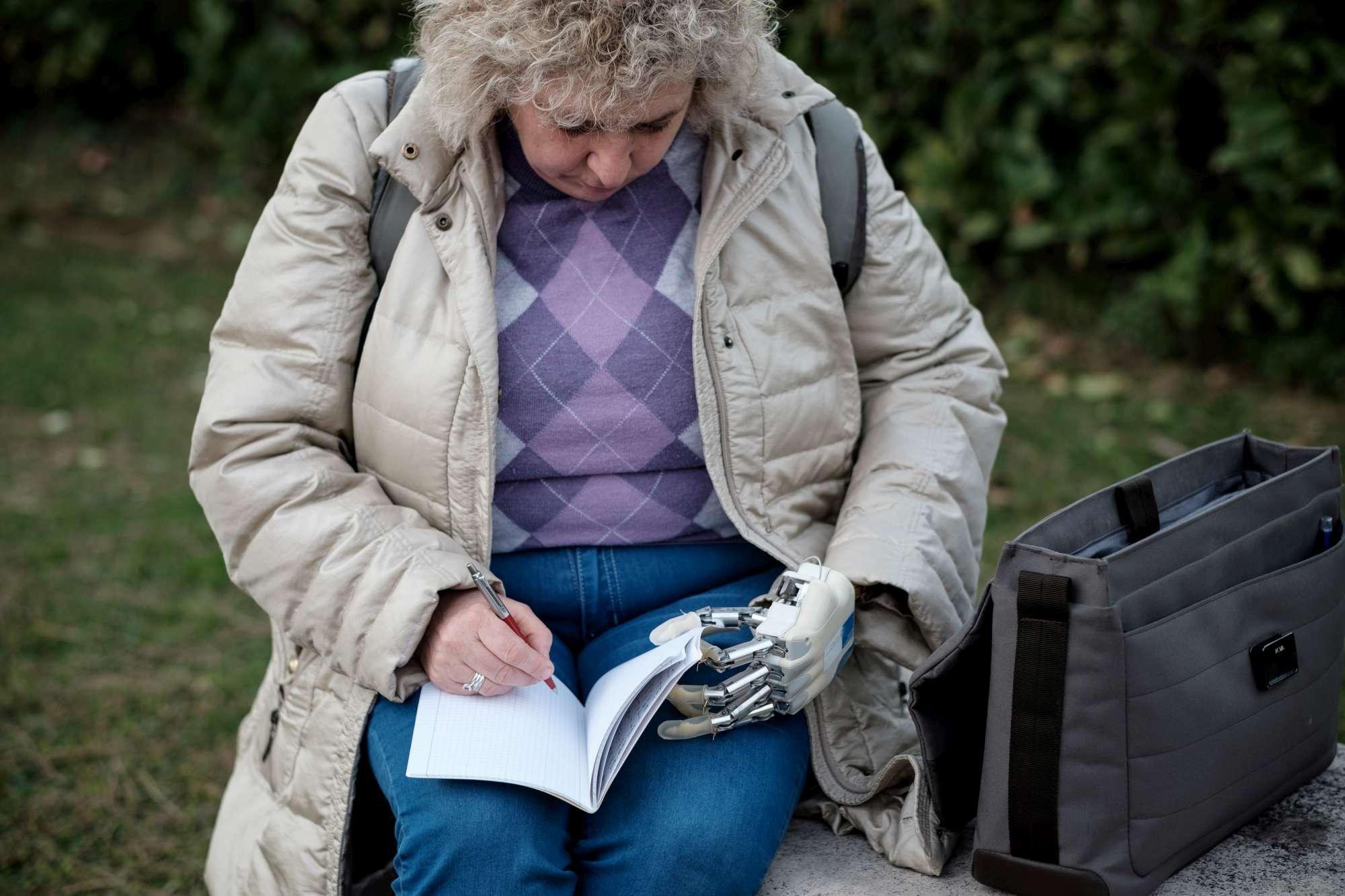 Roma, la prima donna italiana con una mano bionica