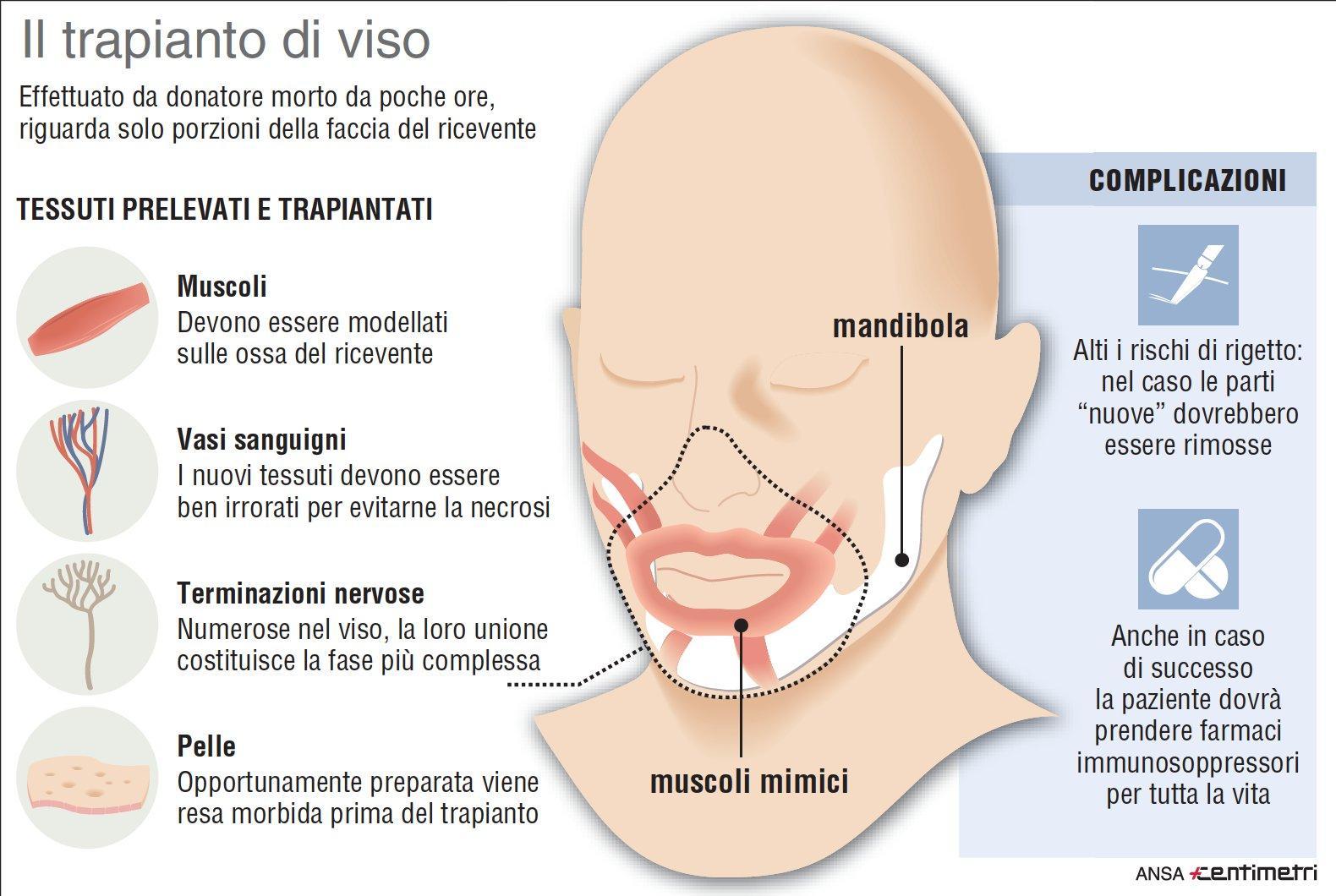 Trapianto viso, quali tessuti possono essere prelevati
