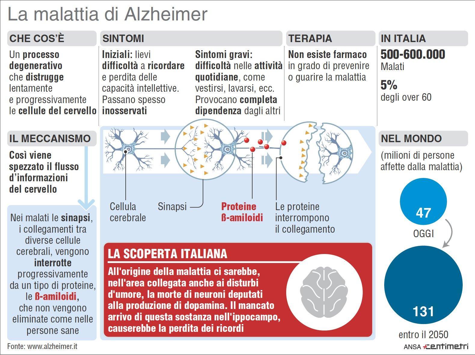 Che cos è l alzheimer