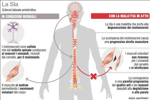 Che cos è la sclerosi laterale amiotrofica