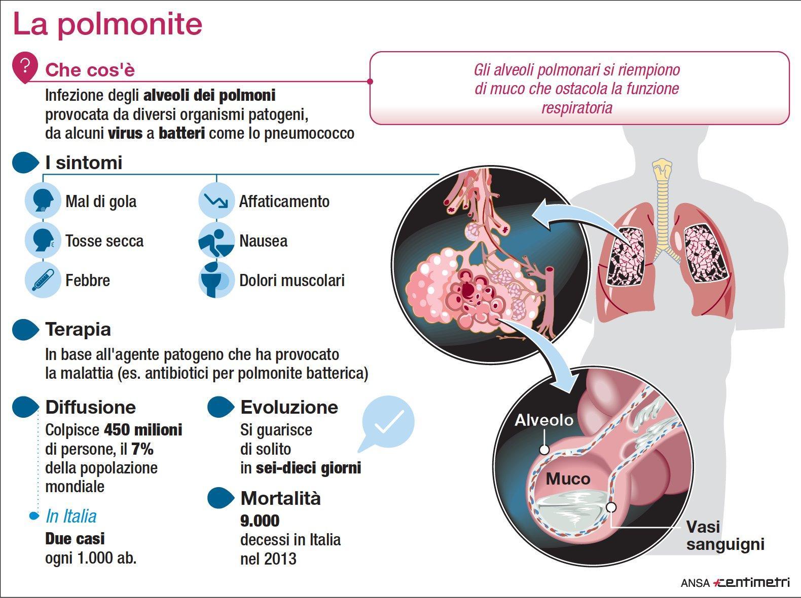 Polmonite, la scheda della malattia