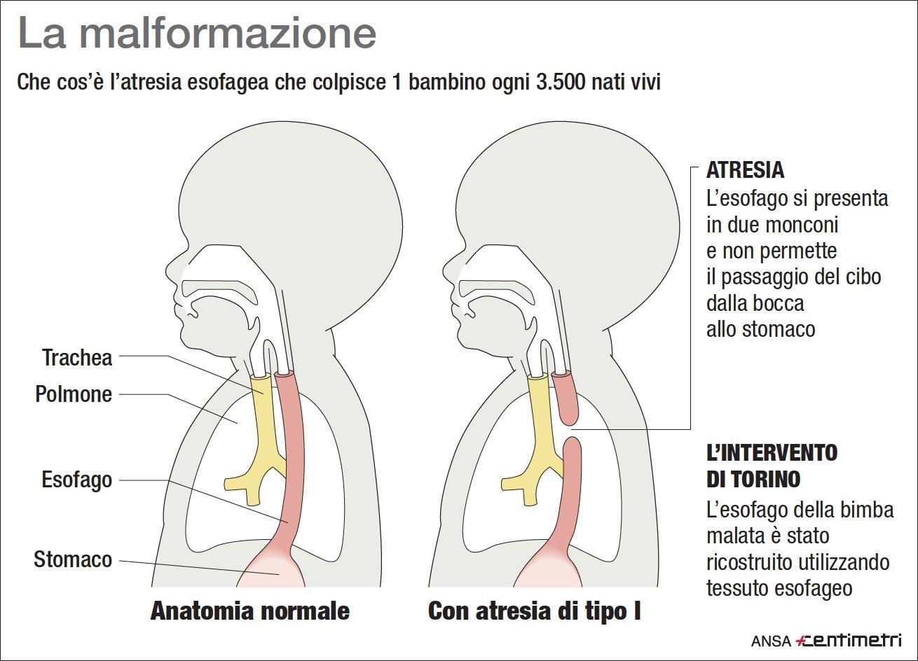 Che cos è l atresia esofagea